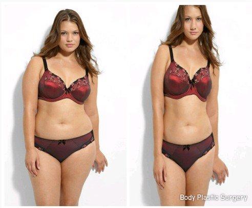 Obrázek: Body Plastic Surgery - porovnání